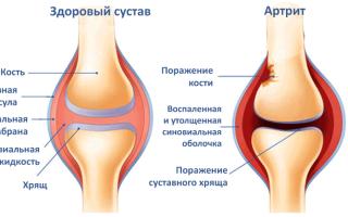 Народные средства от артрита