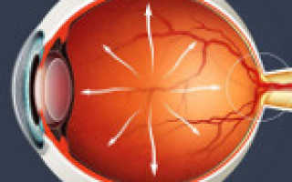 Глаукома первичная открытоугольная