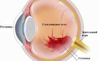 Кровоизлияние в склеру глаза