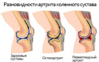 При подъеме по лестнице болит колено