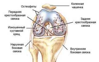Гимнастика при остеоартрозе