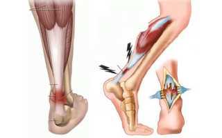 Повреждение связок голеностопного сустава лечение