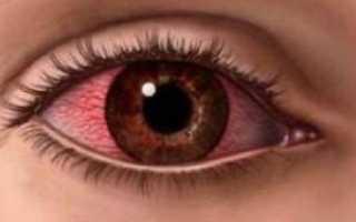 Воспаление глаза чем лечить