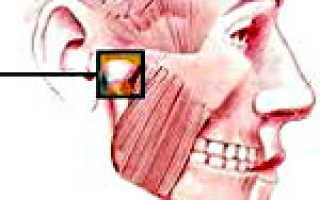 Дисфункция челюстного сустава