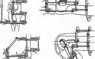 Аппарат илизарова на ноге