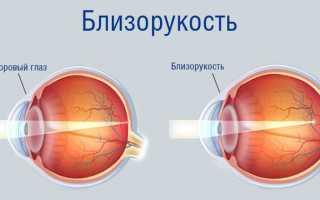 Таблица для проверки зрения орловой
