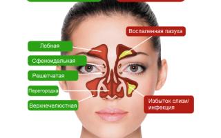 Болит пазуха под глазом