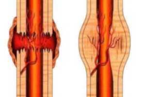 Консолидированный перелом ребра