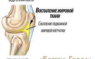 Болезнь гоффа коленного сустава