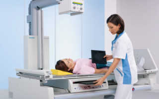Рентген позвоночника грыжа