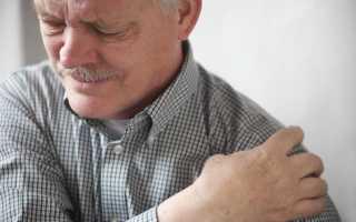 Артроз плечевого сустава симптомы и лечение