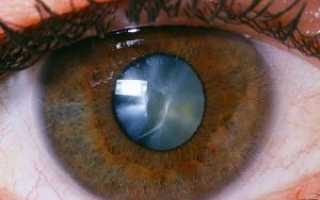 Начальная стадия катаракты лечение