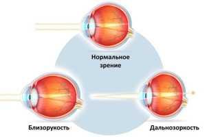 Тренажер для коррекции зрения