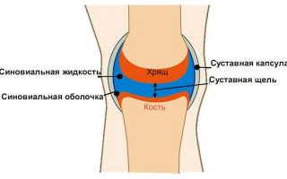 Жидкость в коленном суставе причины и лечение
