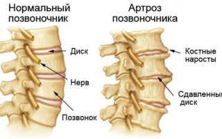 Артроз позвоночника симптомы лечение