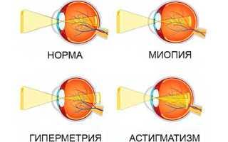 Что лучше линзы или очки