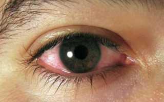 Лопнули сосуды в глазу весь глаз красный чем лечить
