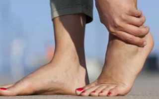 Болит стопа при ходьбе