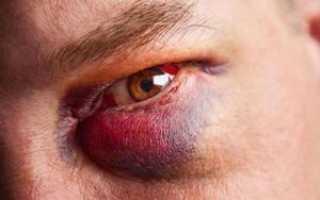 Как быстро вылечить синяк под глазом от удара