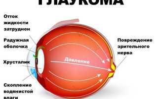 Болит левая сторона головы и левый глаз что это