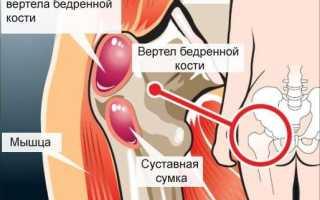Воспаление тазобедренного сустава симптомы и лечение