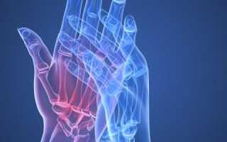 Остеопороз кистей рук