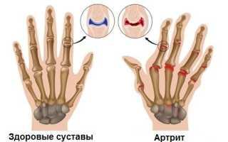Фолиевая кислота при ревматоидном артрите