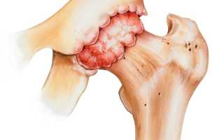 Врач лечащий остеоартроз