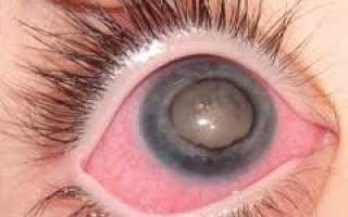 Вторичная глаукома что это такое