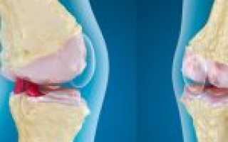Упражнения при остеоартрозе коленного сустава