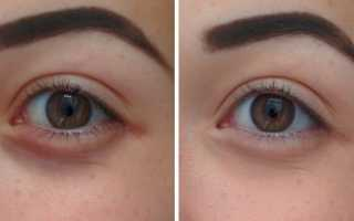 Как закрасить синяки под глазами