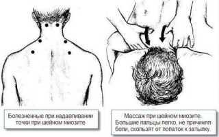 Продуло шею симптомы