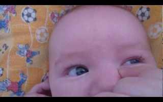 Выделения из глаз у новорожденного