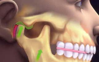 Как вправить челюсть