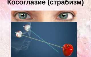 Косоглазия у взрослых причины