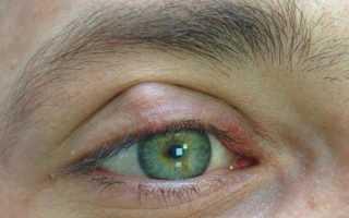 Что такое халязион на глазу
