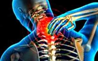 Остеоартроз шейного отдела позвоночника
