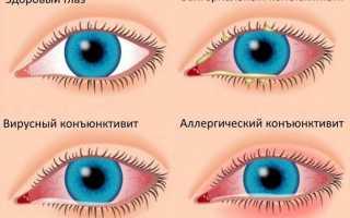 Фурацилин при конъюнктивите