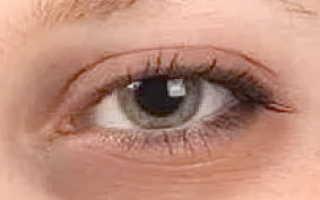 Под глазами синяки и мешки причины