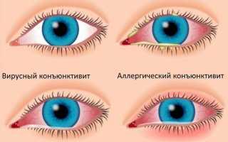 Покраснели глаза после наращивания ресниц что делать