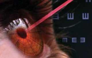 Последствия лазерной коррекции зрения