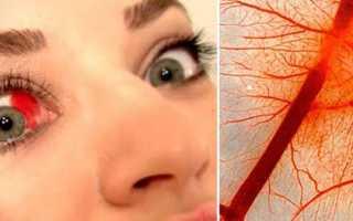 Кровоизлияние в глазу что делать какие капли капать