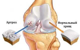 Как снять боль в коленном суставе при артрозе