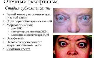 Болезнь выпученные глаза