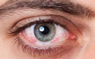 Эписклерит глаза причины