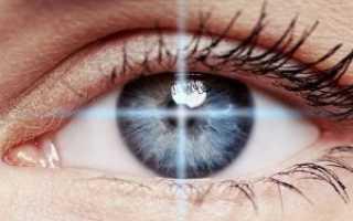 Прижигание лазером сетчатки глаза