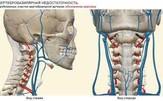 Вертебро базилярная недостаточность на фоне шейного остеохондроза