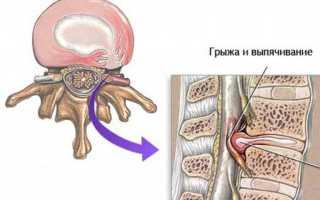 Беременность при грыже поясничного отдела позвоночника