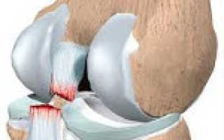Боковая связка коленного сустава лечение