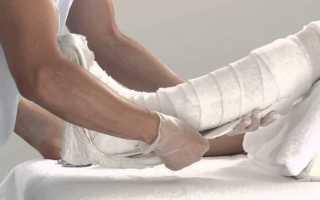 Перелом лодыжки сколько ходить в гипсе